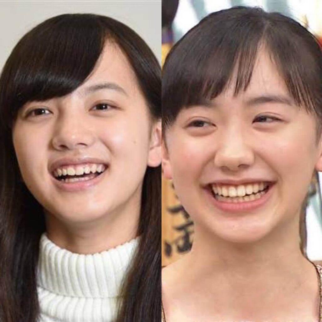 清原果耶 芦田愛菜 歯