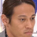 本田圭佑 目 悪化